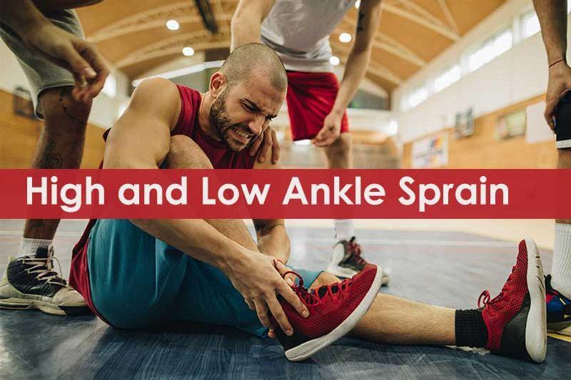 high vs low ankle sprain