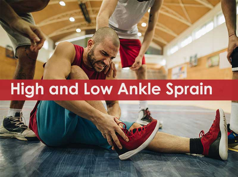 high vs low ankle sprain